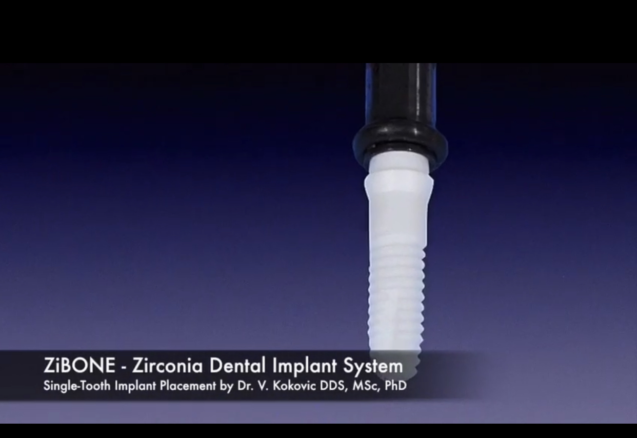 Zibone-Zirconia Dental Implant System Dubai