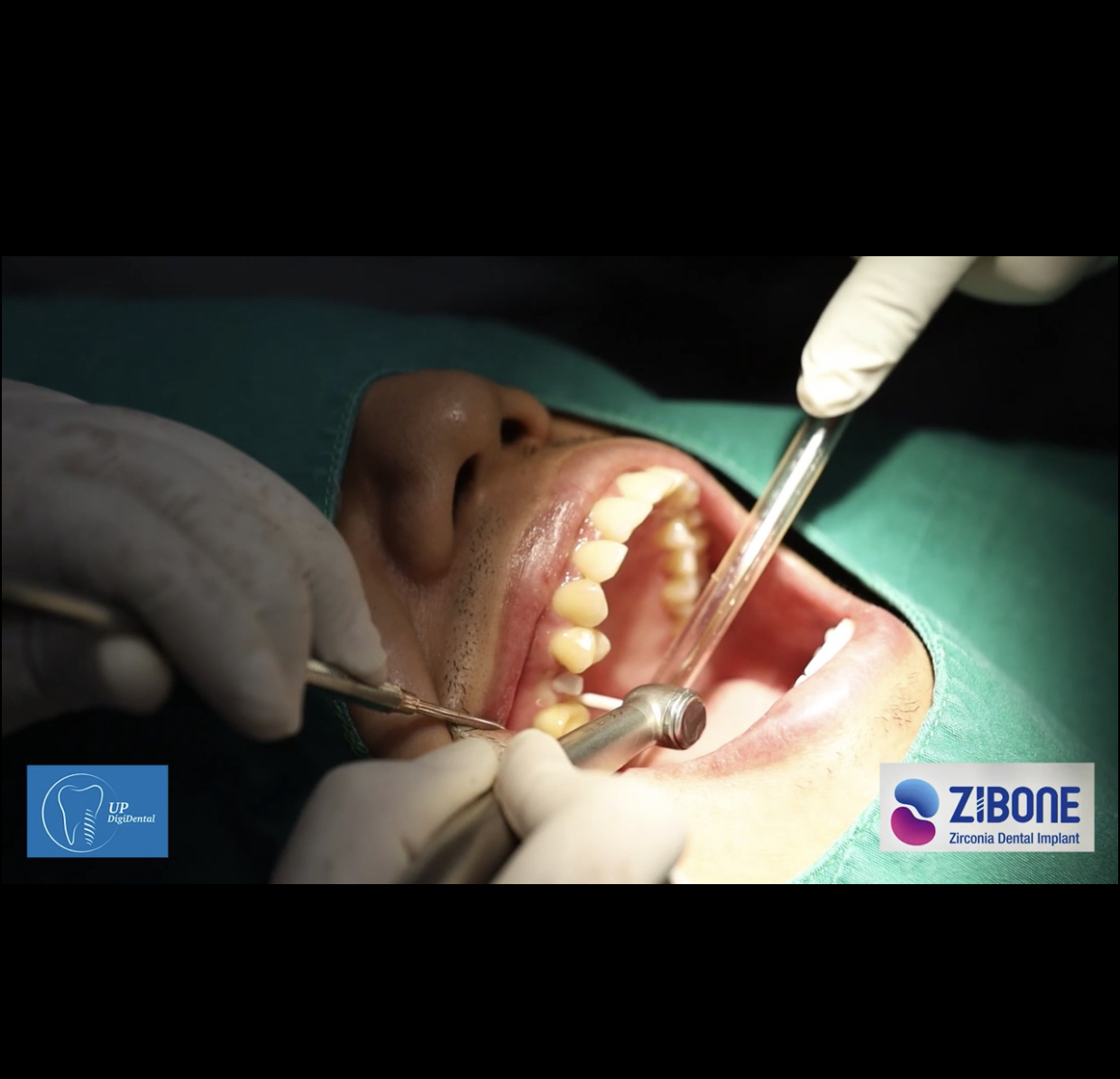 Zibone-Zirconia Dental Implant System -Thailand